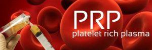 PRP ( Trombositten Zengin Plasma )